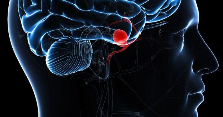 Smegenų aneurizma - itin klastinga ir pavojinga liga.